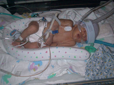 NICU-PEDIA - What To Expect 35 to 37 Weeks